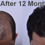 Kako izgleda transplantacija kose bez ožiljaka